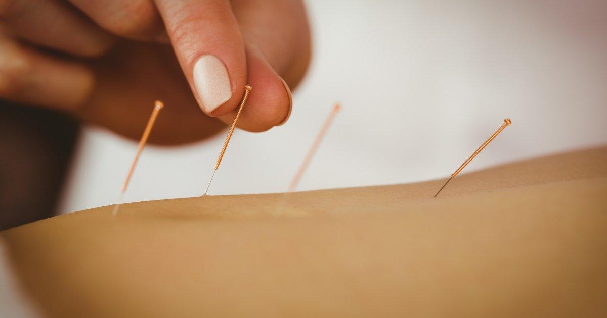 Ízületi gyulladása van? Így segíthet az akupunktúra - EgészségKalauz