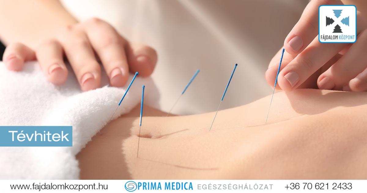segít e az akupunktúra ízületi fájdalmak esetén)