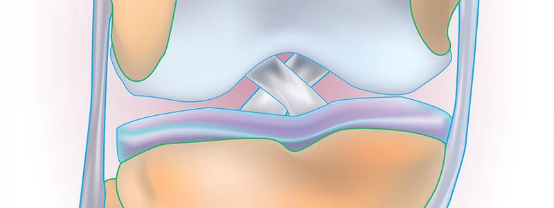 Ínsérülések kezelése -ínszalag sérülések