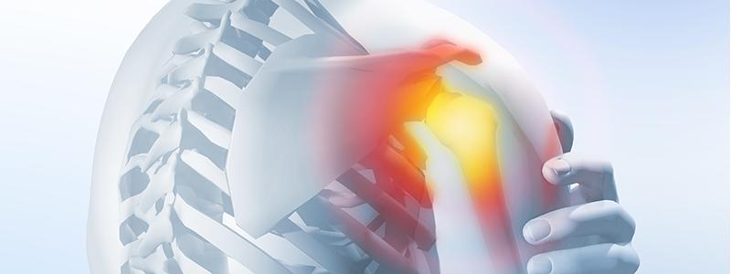 Rotátorköpeny-szakadás - okai, tünetek, kezelése