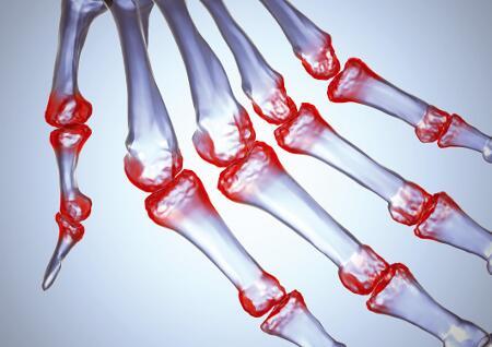 a lábak csípőízületeinek gyulladása)