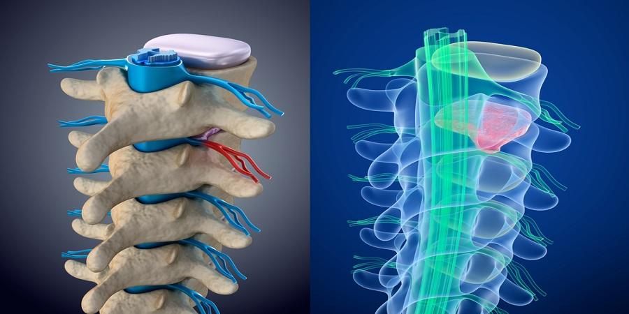 eszközök denas artrózis kezelésére
