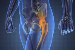 csípő-artrózis klinika