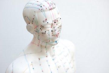 Akupunktúrával a fájdalom ellen