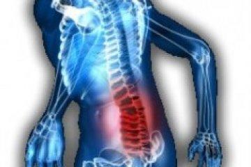 Aktív fájdalomcsillapítással hatékonyan kezelhető az idegbecsípődés