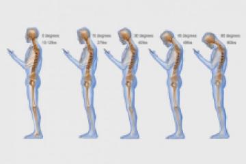 A túlzott mobilozás következménye, a nyaki fájdalom és merevség