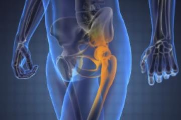 Fáj a csípője, és már megerőltető minden mozdulat? Az aktív fájdalomcsillapítás segíthet a panaszain!