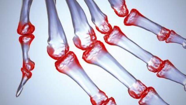 Krónikus sokízületi gyulladás aktív terápiája