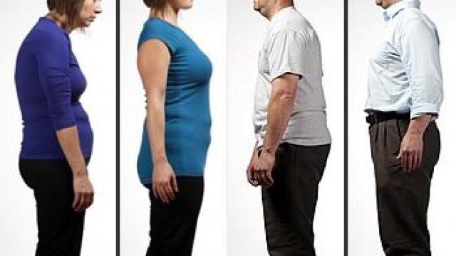Nagy fájdalmakhoz vezethet a helytelen testtartás