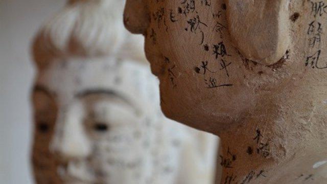 Példátlan előrelépések az akupunktúra alkalmazásában