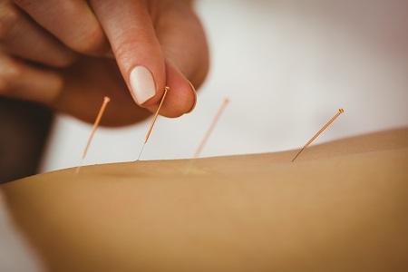Az orvosi akupunktúra hatékony fájdalomcsillapító módszer.
