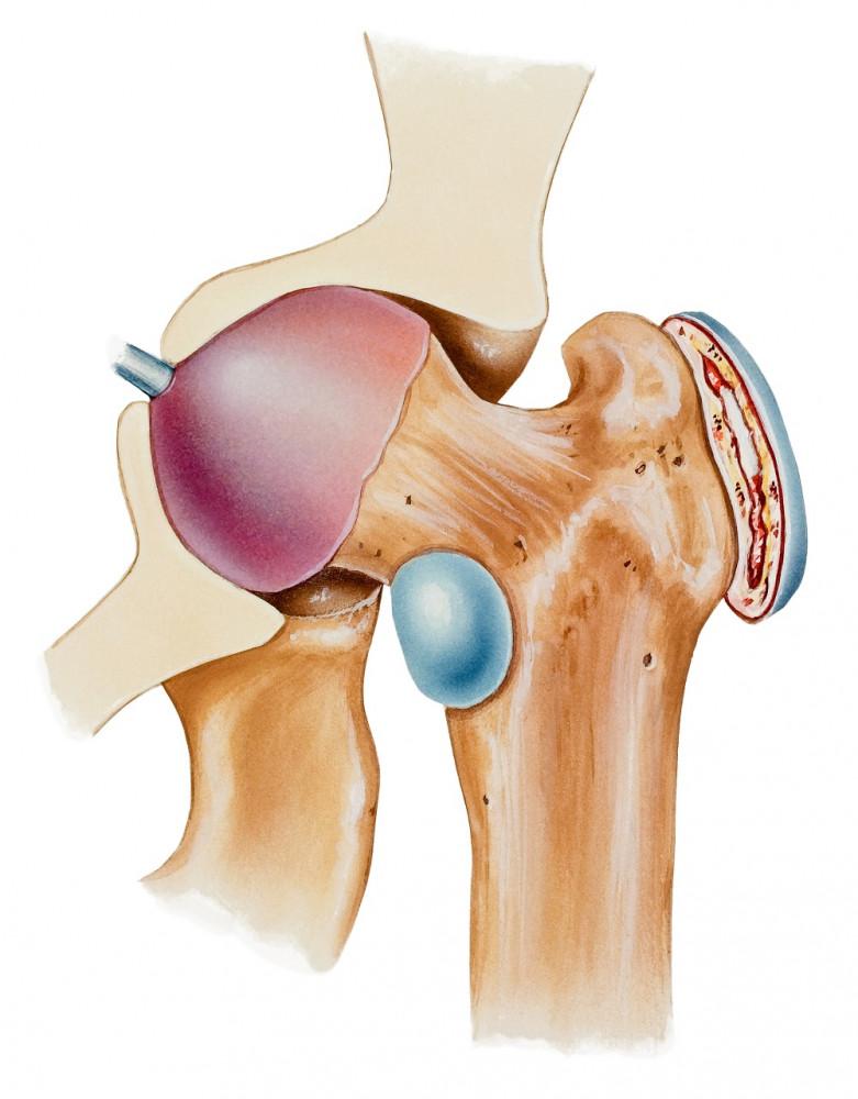miért fáj a protézis csípőízület)