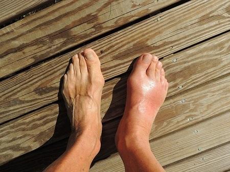 csökkenti a nagy lábujj ízületének fájdalmát