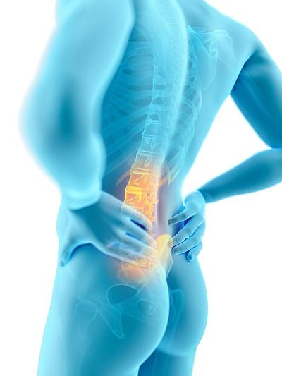 A gerincsérv kezelésében alapvető a gyógytorna.